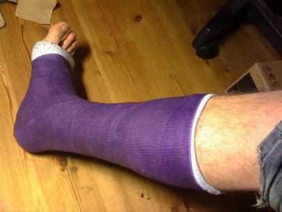 Casted Broken Leg